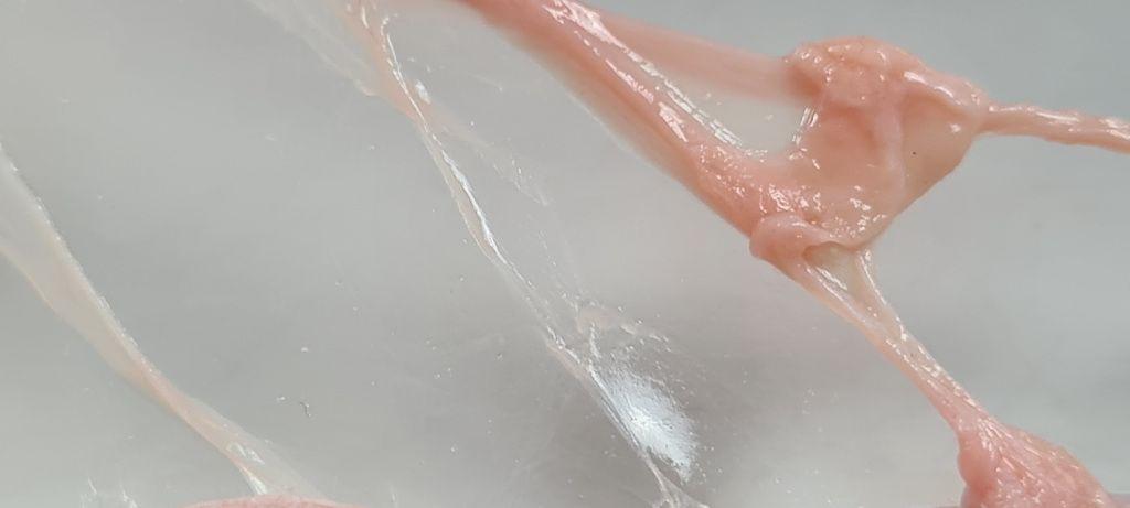 Das Bild zeigt eine Originalaufnahme einer Faszie zur Veranschaulichung der Bedeutung der Faszientherapie zur Schmerzbehandlung